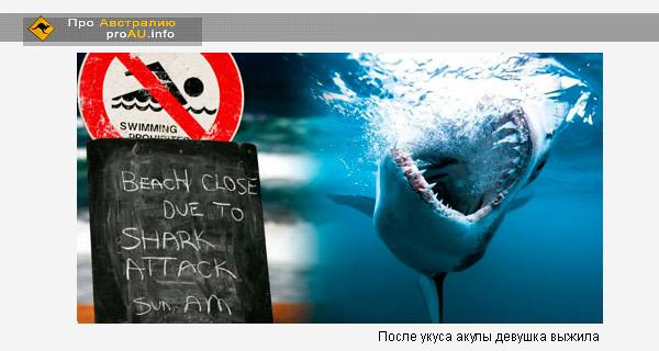 После укуса акулы девушка выжила